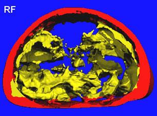Micro-CT, Foto: Anke Schlösser